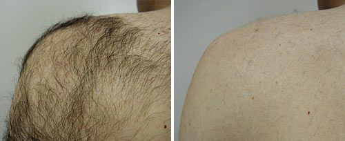 Hair Removal and Reduction Shoulder and Back