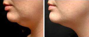 Laser-Lipo Body Contouring