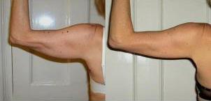 laser-lipo-inchloss-arms